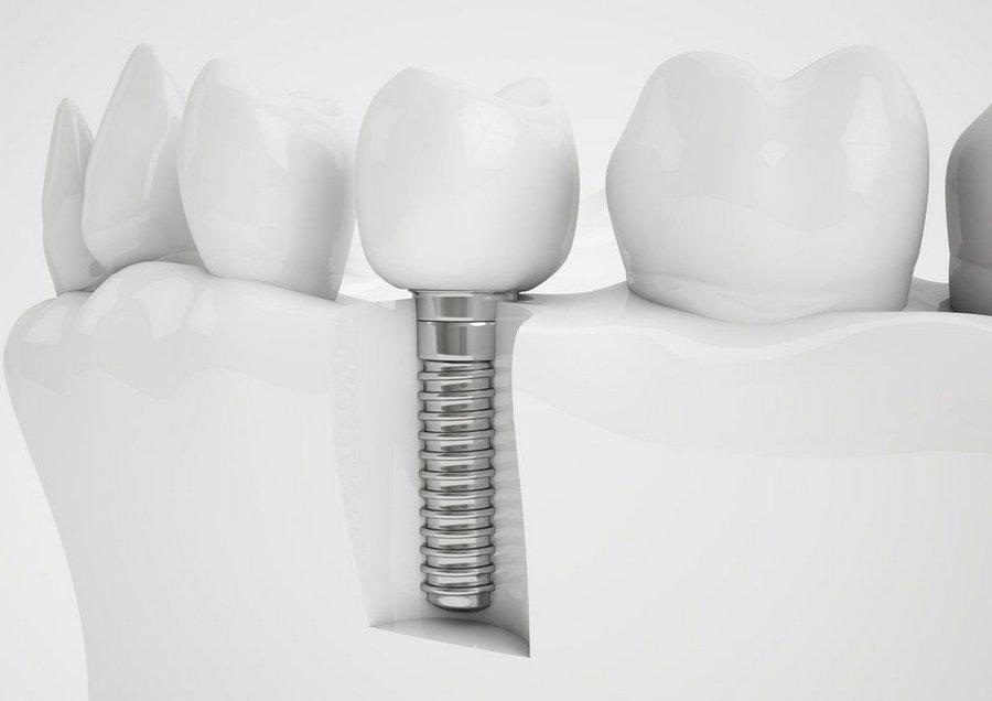 нержавейка для стоматологии